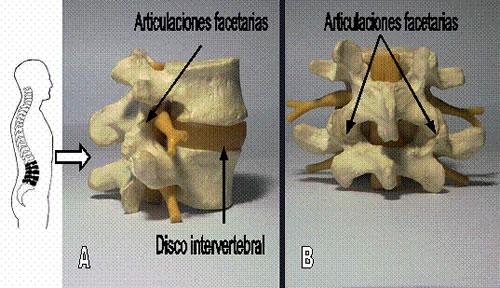Disminicion de los espacios foraminales | Consultorio de