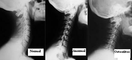 lordosis_cervical