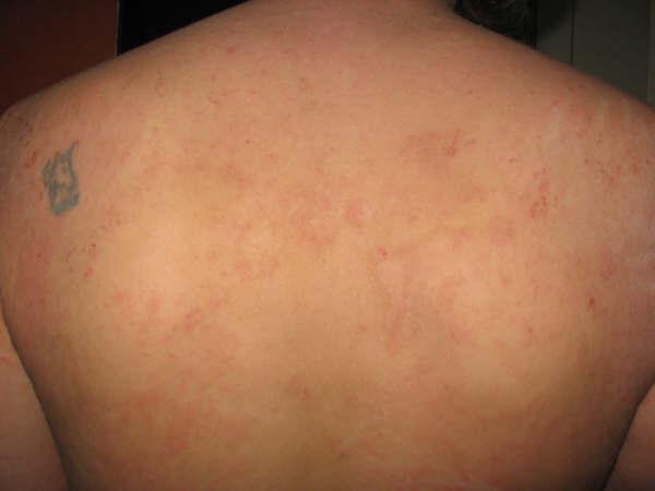Los preparados eficaces a atopicheskom la dermatitis