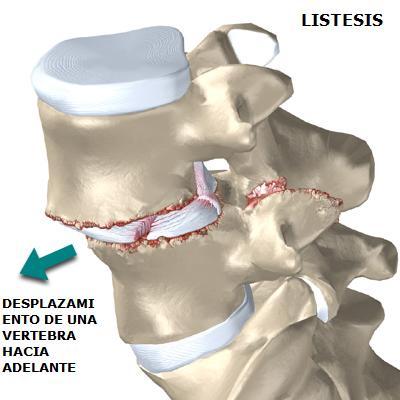 Listesis