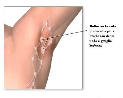 Los bultos en la axila cuando no son dolorosos pueden ser tumores.